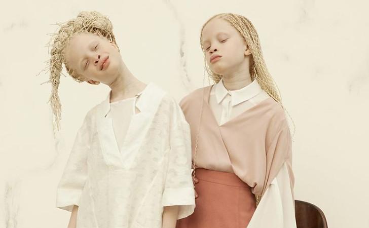 les jumelles Albinos, du Brésil